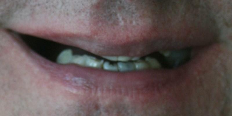 rekonstrukcja zębów warszawa