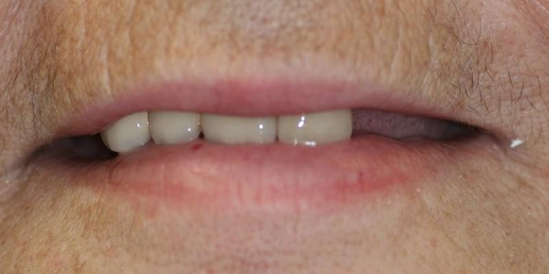mosty stomatologiczne warszawa