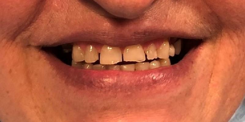 odbudowa zębów warszawa