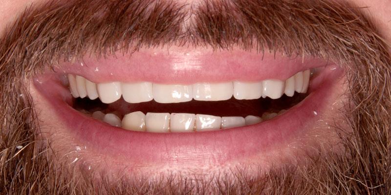 nadbudowa stałych zębów