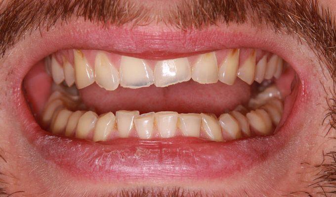 podwyższenie wysokości zwarcia zębów